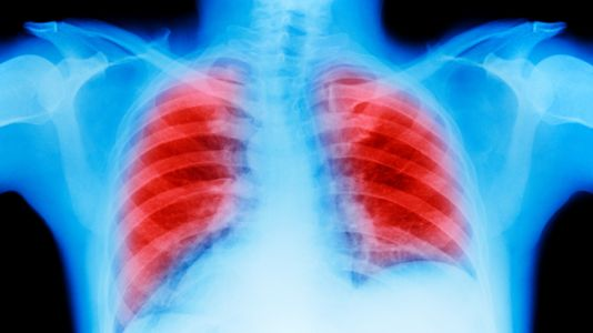 Merck Tightens Its Grip on Lung Cancer, as Bristol Lags: Gadfly