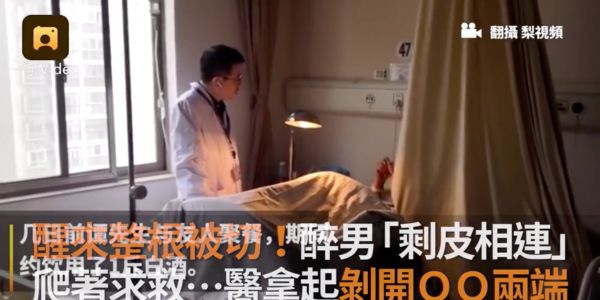 Doctors reattached the severed penis of a Chinese man who woke up in a pool of blood with no idea what happened to him