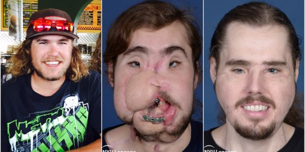 A 26-year-old face transplant patient spoke about his astonishing recovery less than three years after attempting suicide