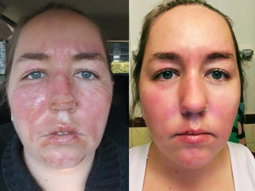 This burn victim's side-by-side photos show the 'shocking' healing abilities of our skin