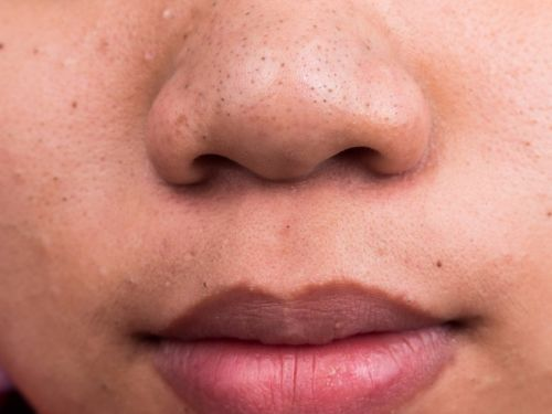 How to cover up any type of acne with makeup