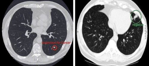 Google's lung cancer detection AI outperforms 6 human radiologists