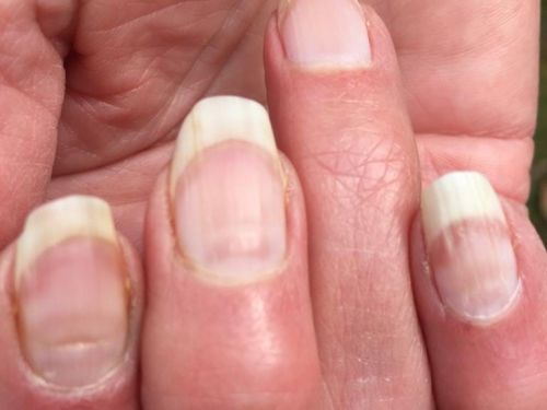 People are getting 'COVID nails,' and one expert says the unusual lines could be used as an antibody test to prove previous infection
